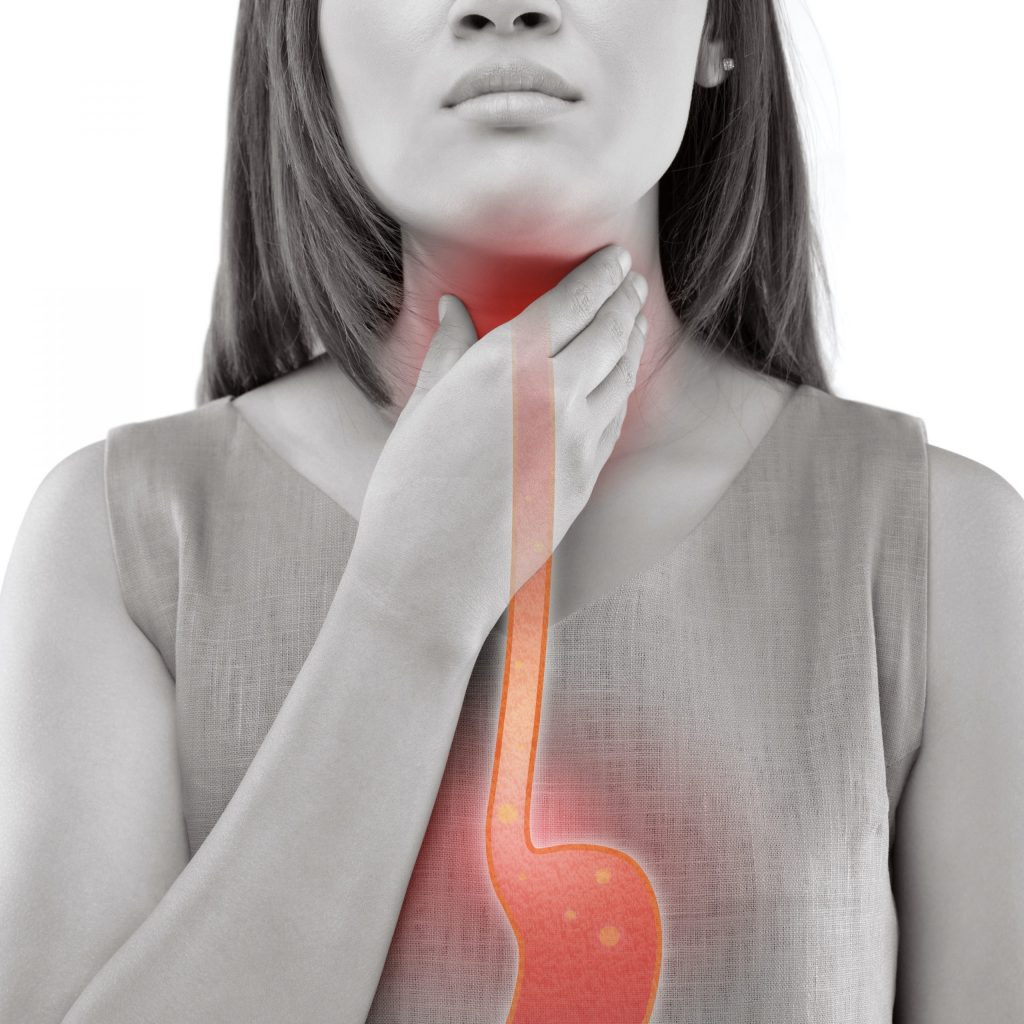 A young woman with an illustration of her esophagus to show the inflammation caused by acid reflux disease.